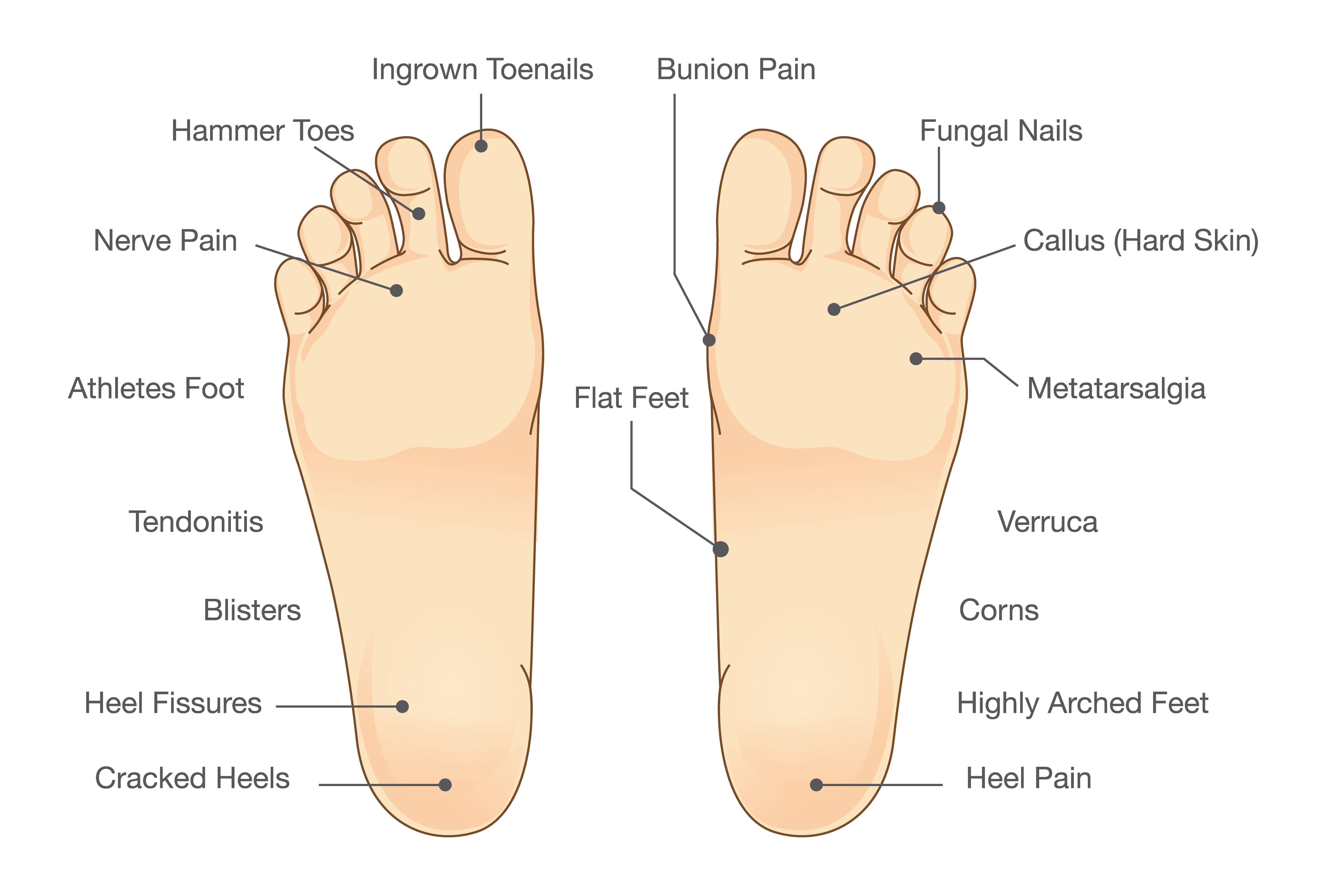 Foot problem diagram
