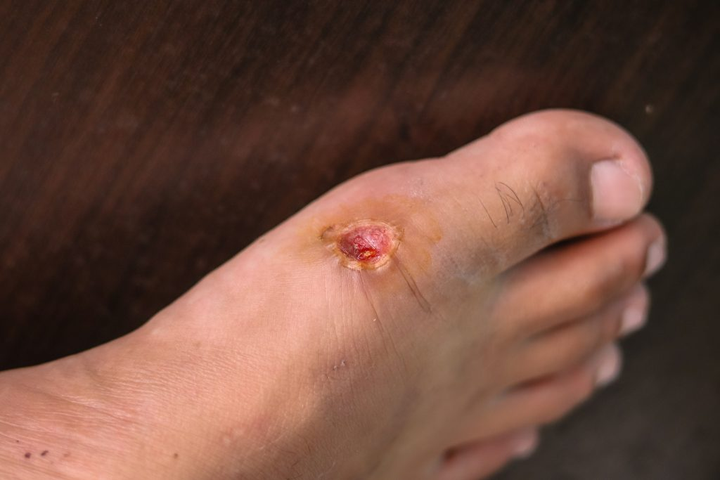 Foot wound care